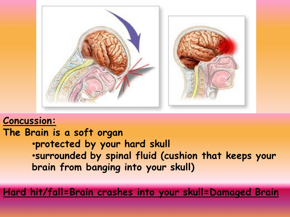 Concussion: The Brain is a soft organ. protected by your hard skull.
