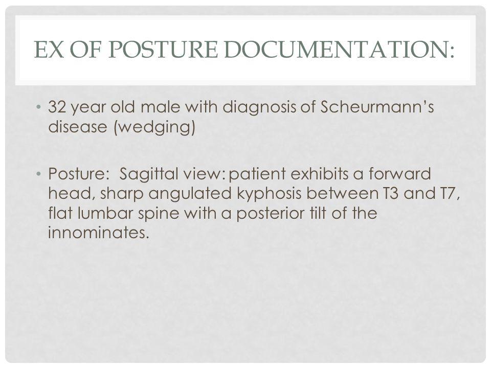 Ex of Posture Documentation: