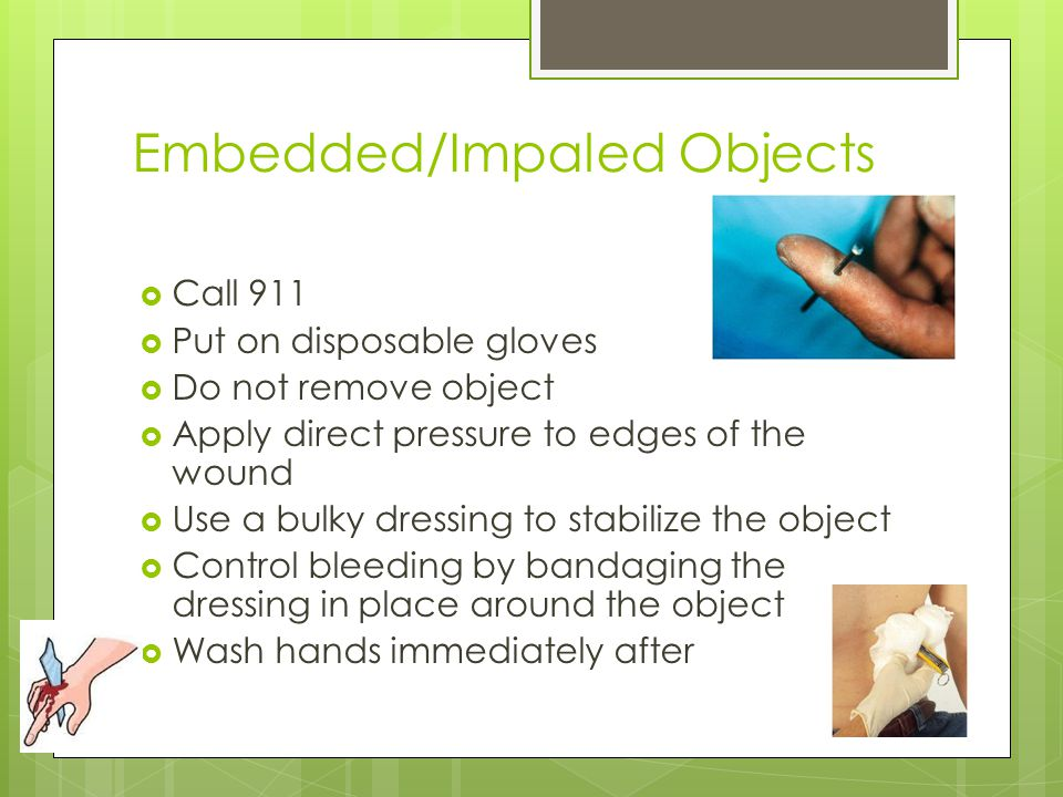 Embedded/Impaled Objects