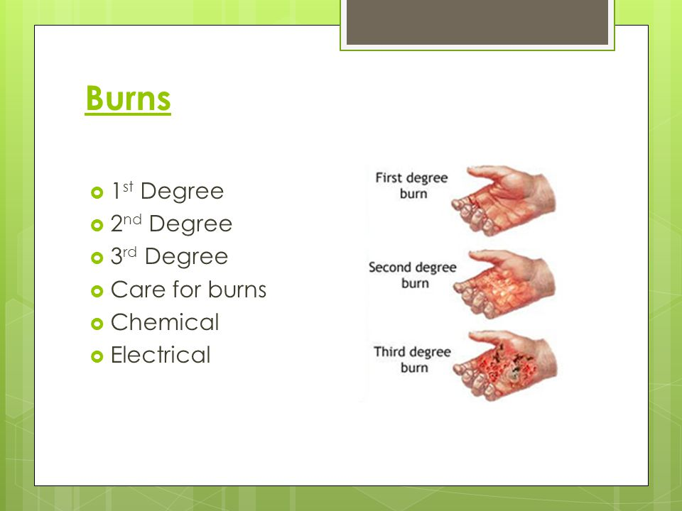 Burns 1st Degree 2nd Degree 3rd Degree Care for burns Chemical