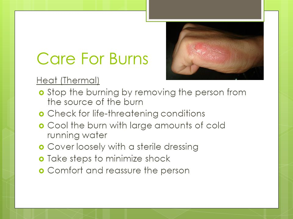 Care For Burns Heat (Thermal)