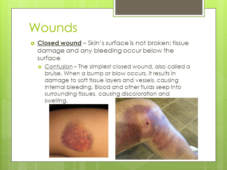 Wounds Closed wound – Skin's surface is not broken; tissue damage and any bleeding occur below the surface.