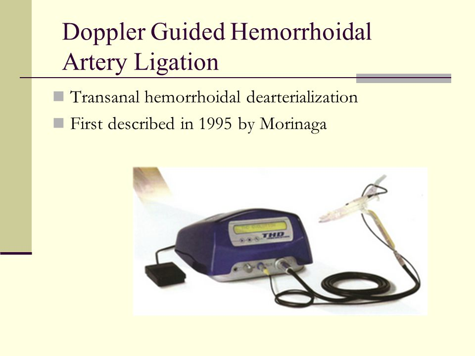 Doppler Guided Hemorrhoidal Artery Ligation