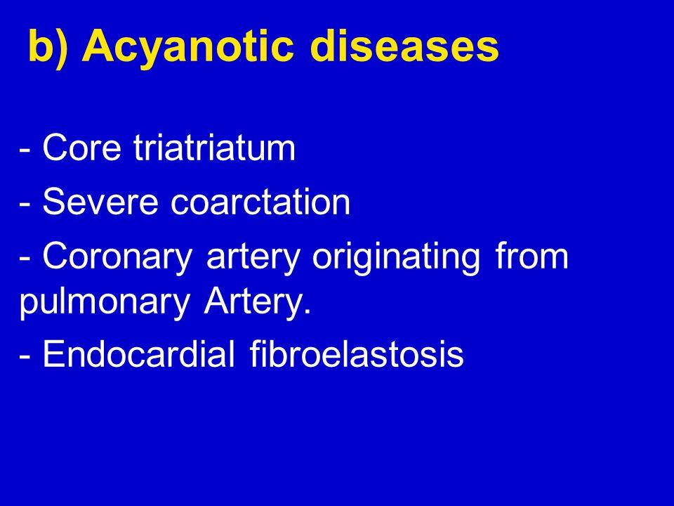 - Coronary artery originating from pulmonary Artery.