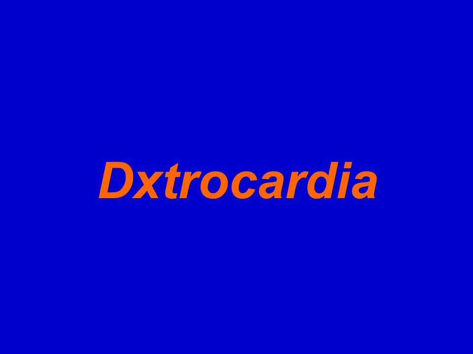 Dxtrocardia