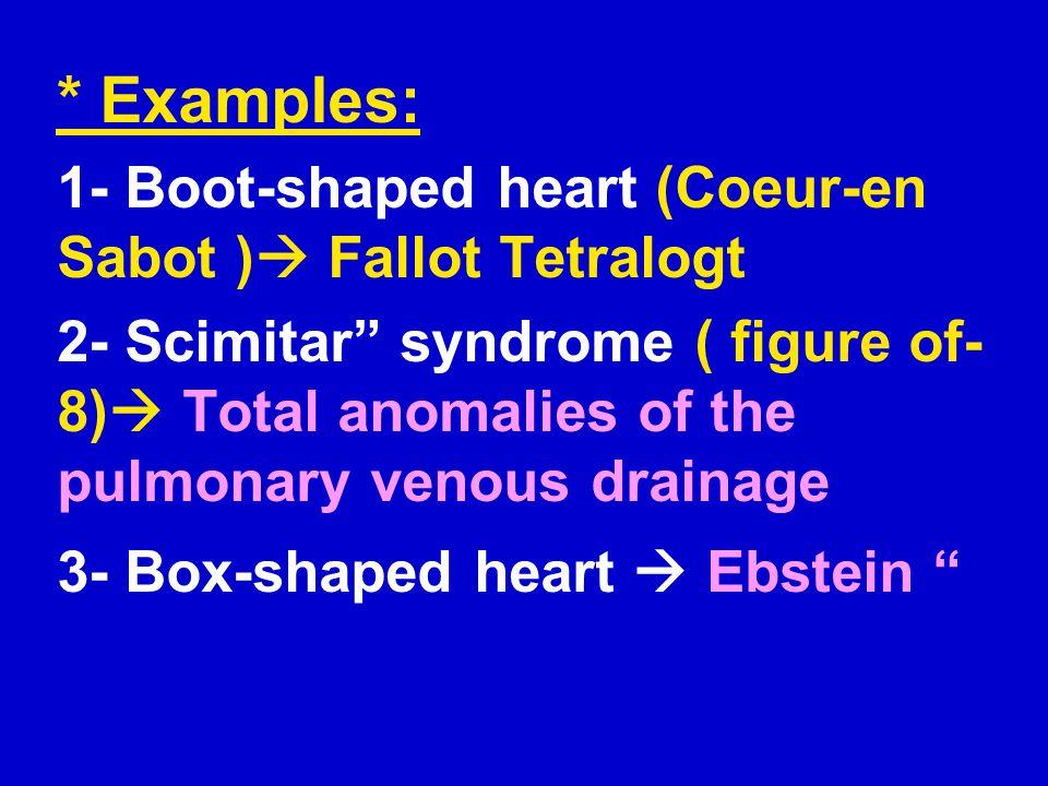 * Examples: 1- Boot-shaped heart (Coeur-en Sabot ) Fallot Tetralogt