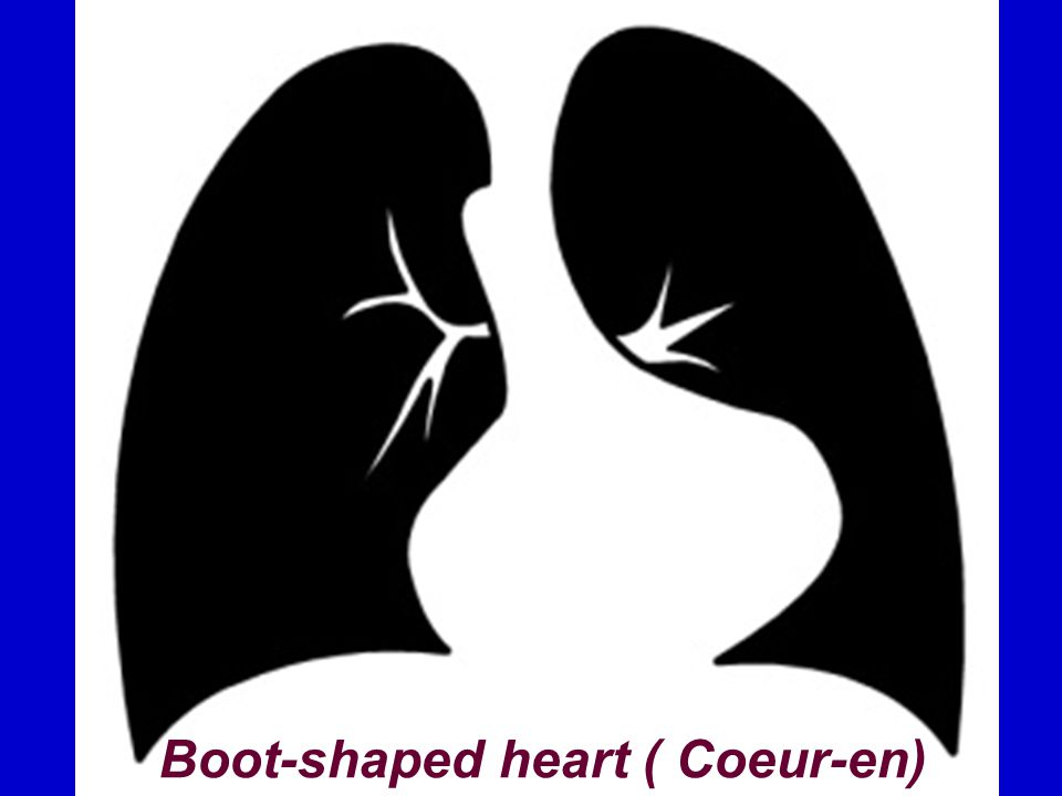 Boot-shaped heart ( Coeur-en)