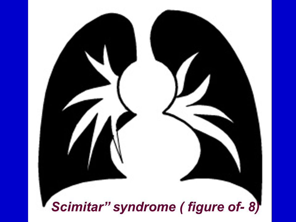 Scimitar syndrome ( figure of- 8)