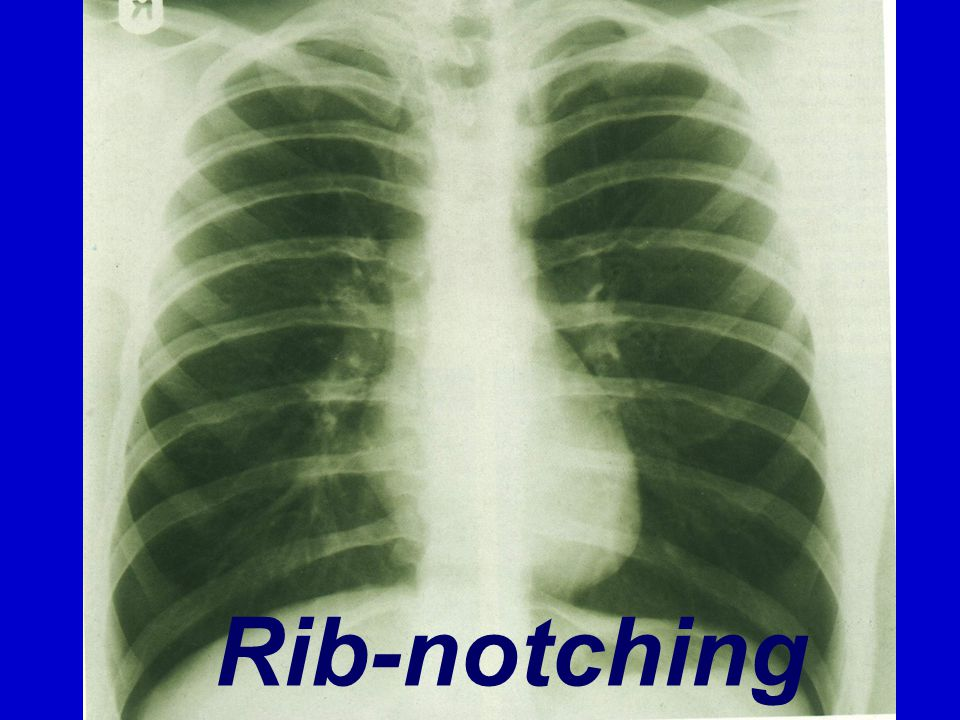 Rib-notching