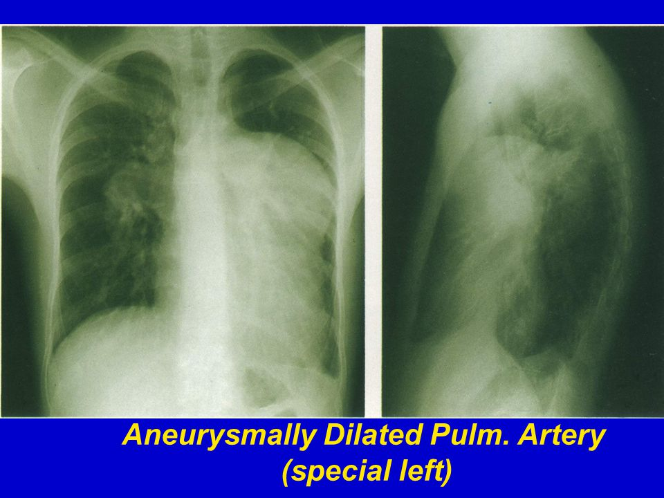 Aneurysmally Dilated Pulm. Artery