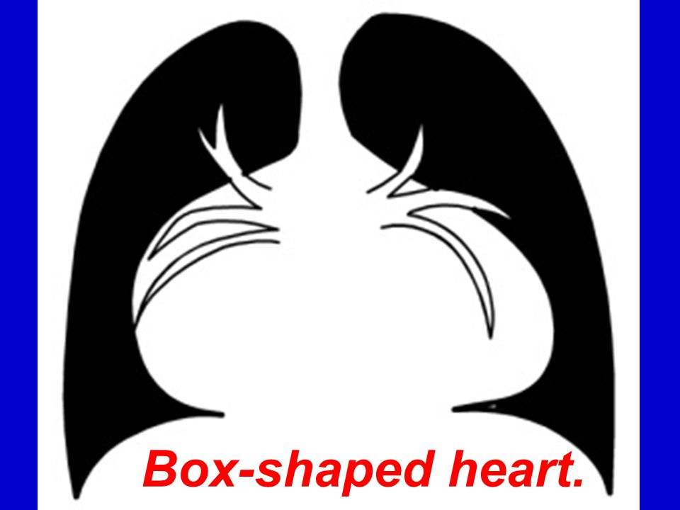 Box-shaped heart.