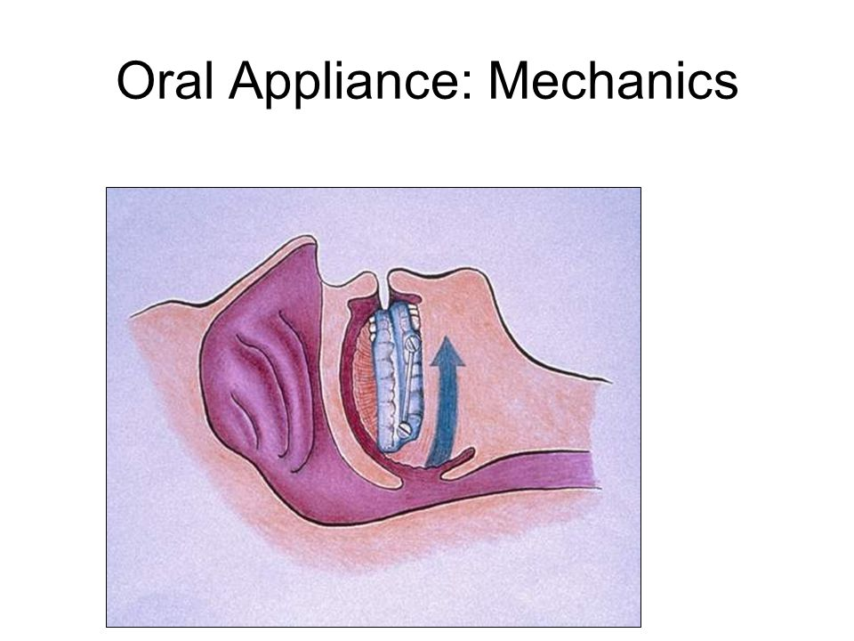 Oral Appliance: Mechanics