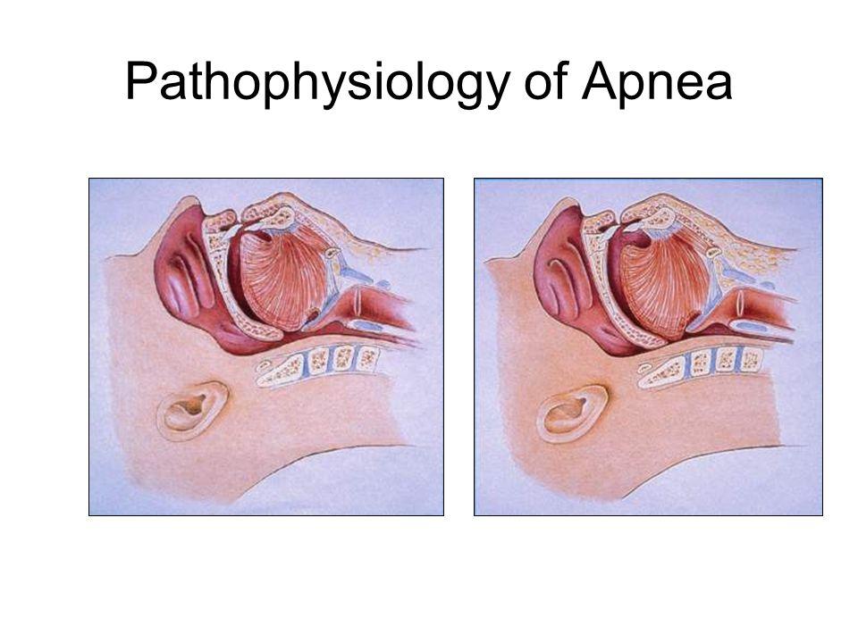 Pathophysiology of Apnea