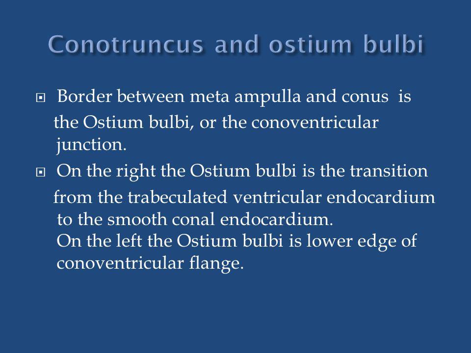 Conotruncus and ostium bulbi