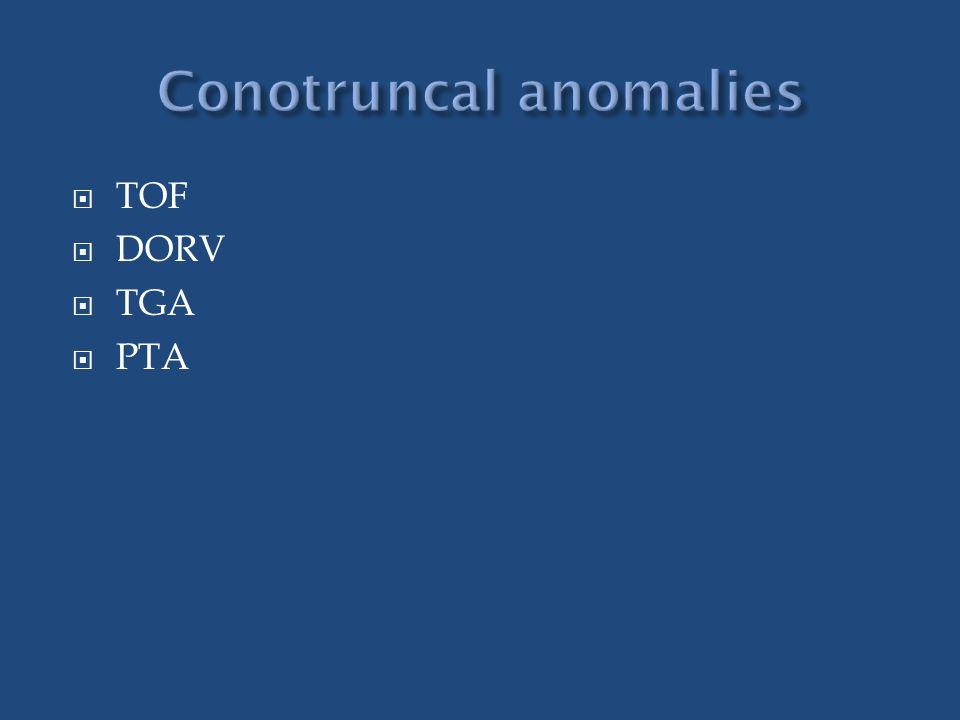 Conotruncal anomalies