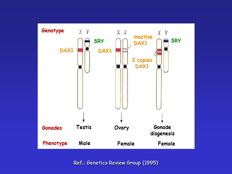 Gonades Genotype. Phenotype. Testis. Male. Female. Ovary. Gonade. disgenesis. DAX1. SRY. inactive.