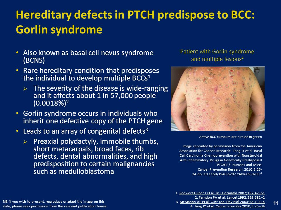 Hereditary defects in PTCH predispose to BCC: Gorlin syndrome