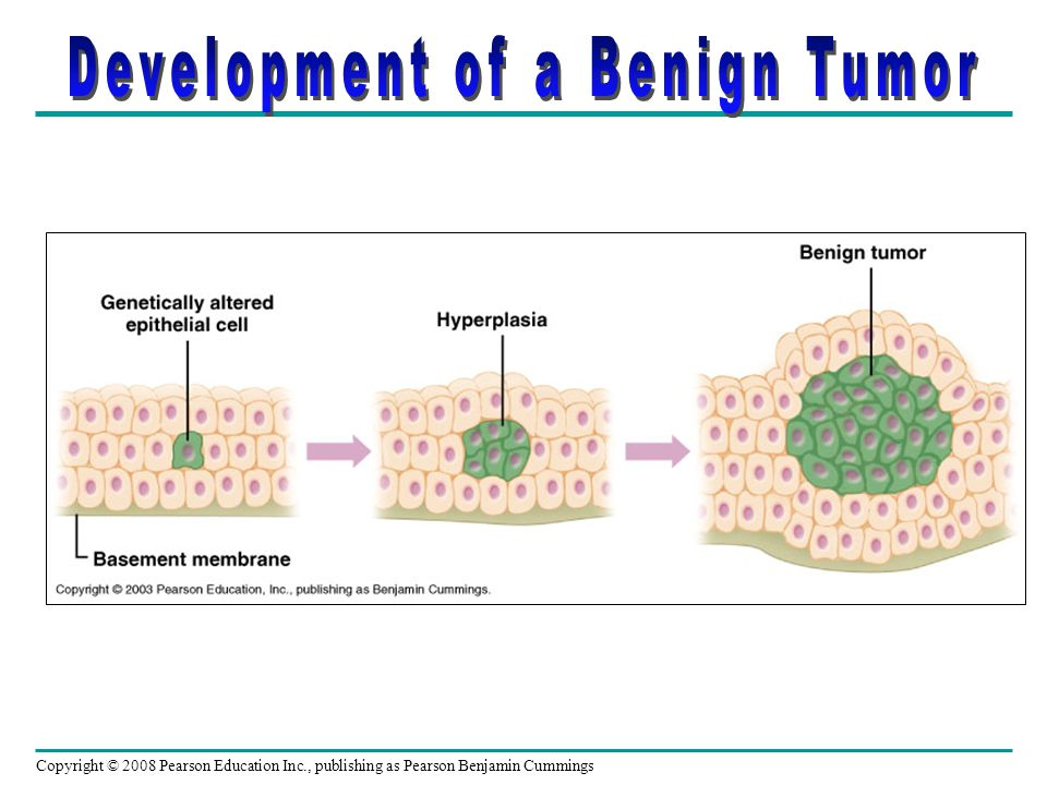 Development of a Benign Tumor