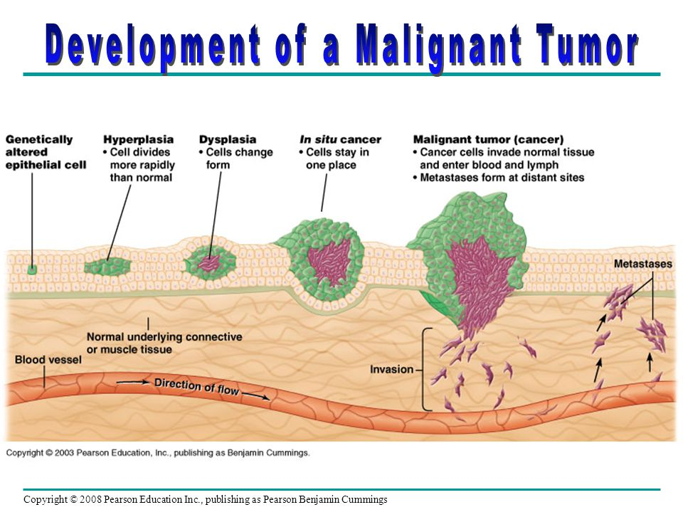 Development of a Malignant Tumor