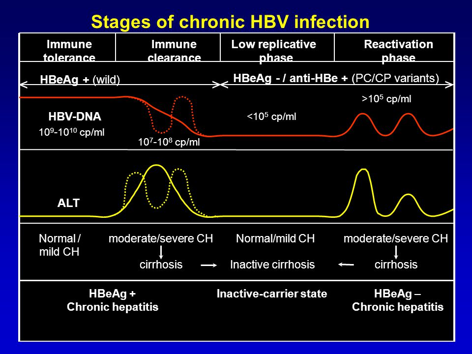 Stages of chronic HBV infection Inactive-carrier state