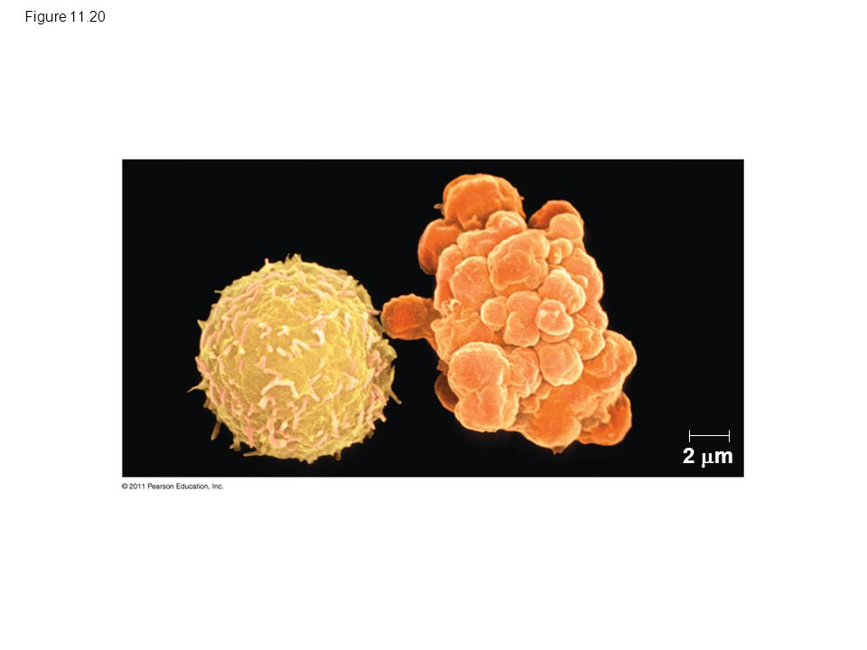 Figure 11.20 Figure 11.20 Apoptosis of a human white blood cell. 2 m