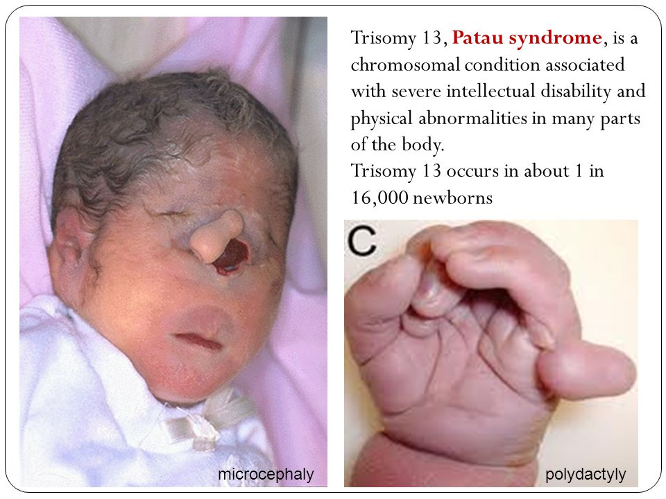 Trisomy 13 occurs in about 1 in 16,000 newborns