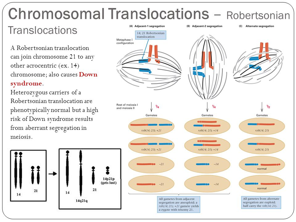 Chromosomal Translocations – Robertsonian Translocations