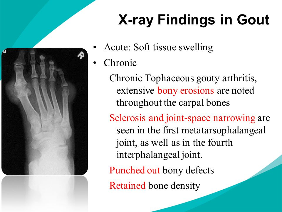 X-ray Findings in Gout Acute: Soft tissue swelling Chronic