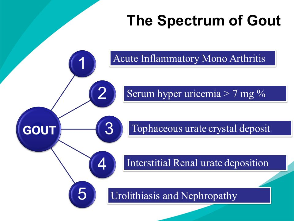 1 2 3 4 5 The Spectrum of Gout GOUT Acute Inflammatory Mono Arthritis