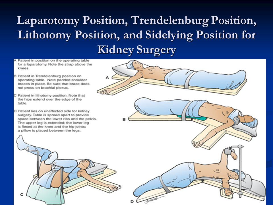 Laparotomy Position, Trendelenburg Position, Lithotomy Position, and Sidelying Position for Kidney Surgery