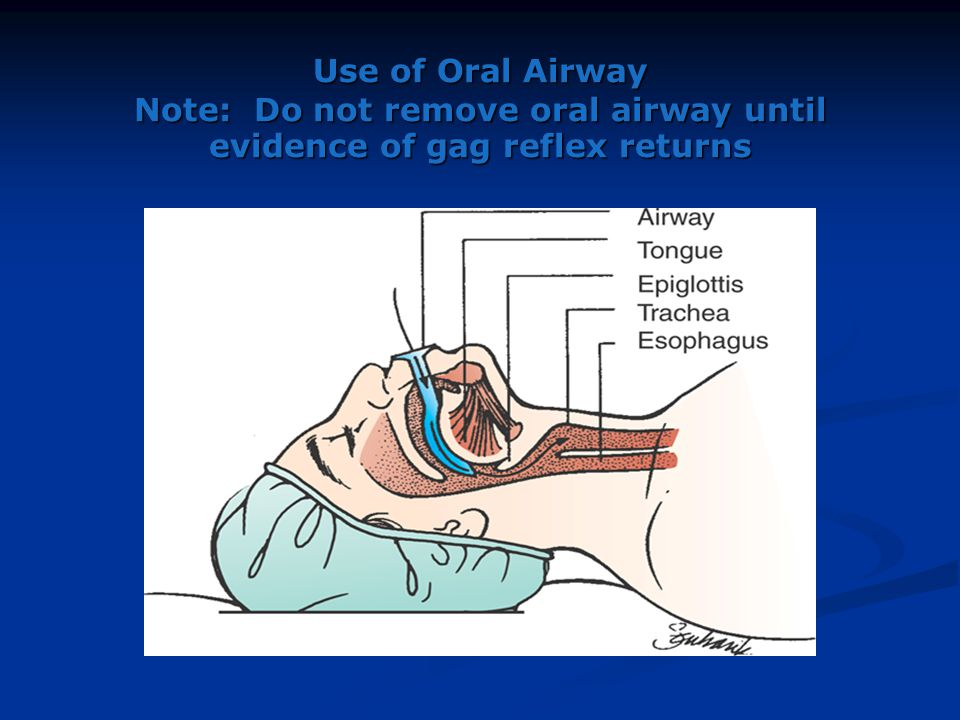Use of Oral Airway Note: Do not remove oral airway until evidence of gag reflex returns