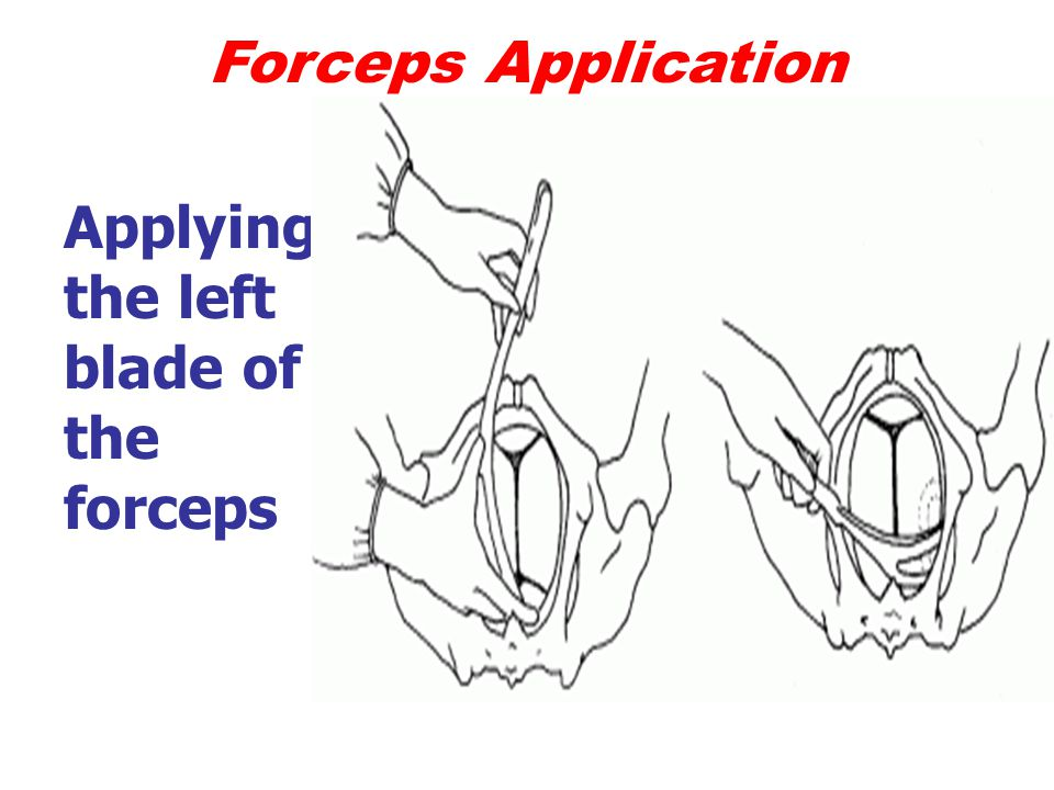 Forceps Application Applying the left blade of the forceps
