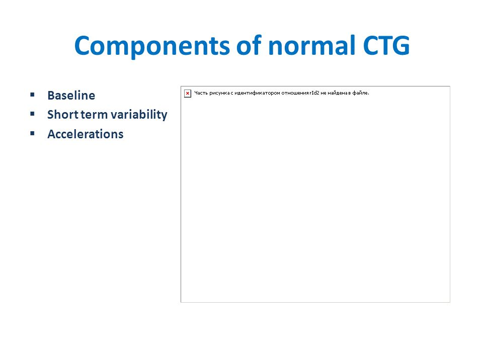 Components of normal CTG