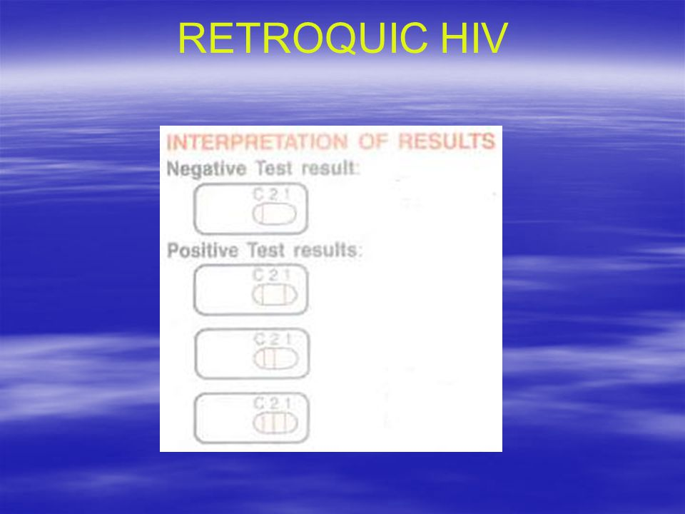 RETROQUIC HIV
