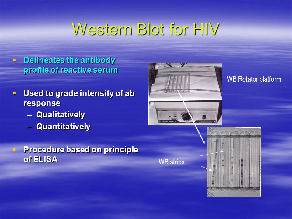 Western Blot for HIV Delineates the antibody profile of reactive serum