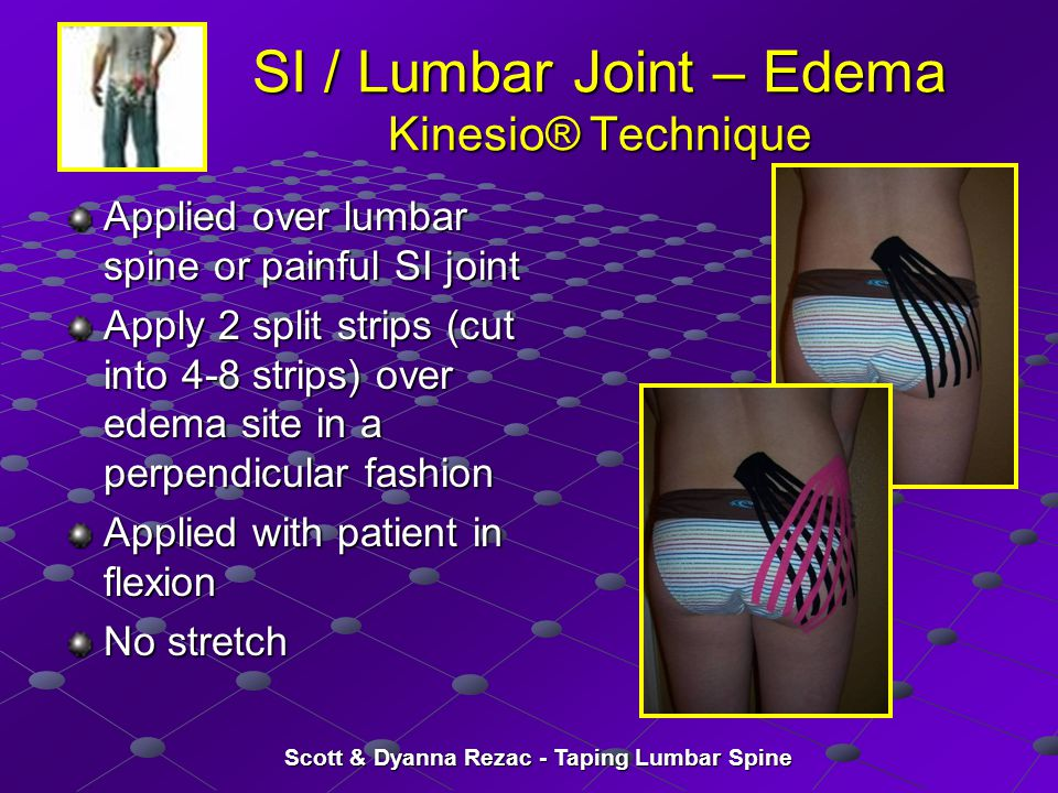 SI / Lumbar Joint – Edema Kinesio® Technique