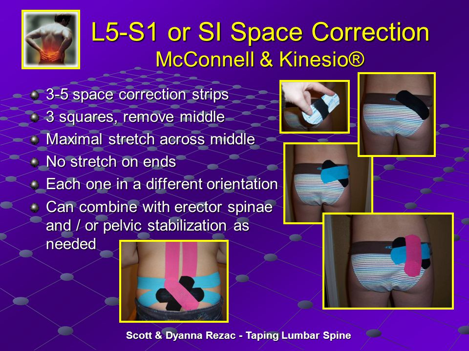 L5-S1 or SI Space Correction McConnell & Kinesio®