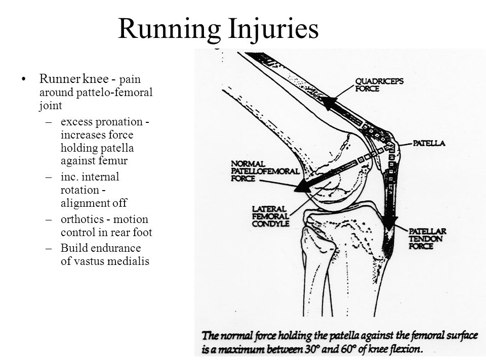 Running Injuries Runner knee - pain around pattelo-femoral joint
