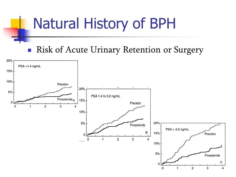 Natural History of BPH Risk of Acute Urinary Retention or Surgery