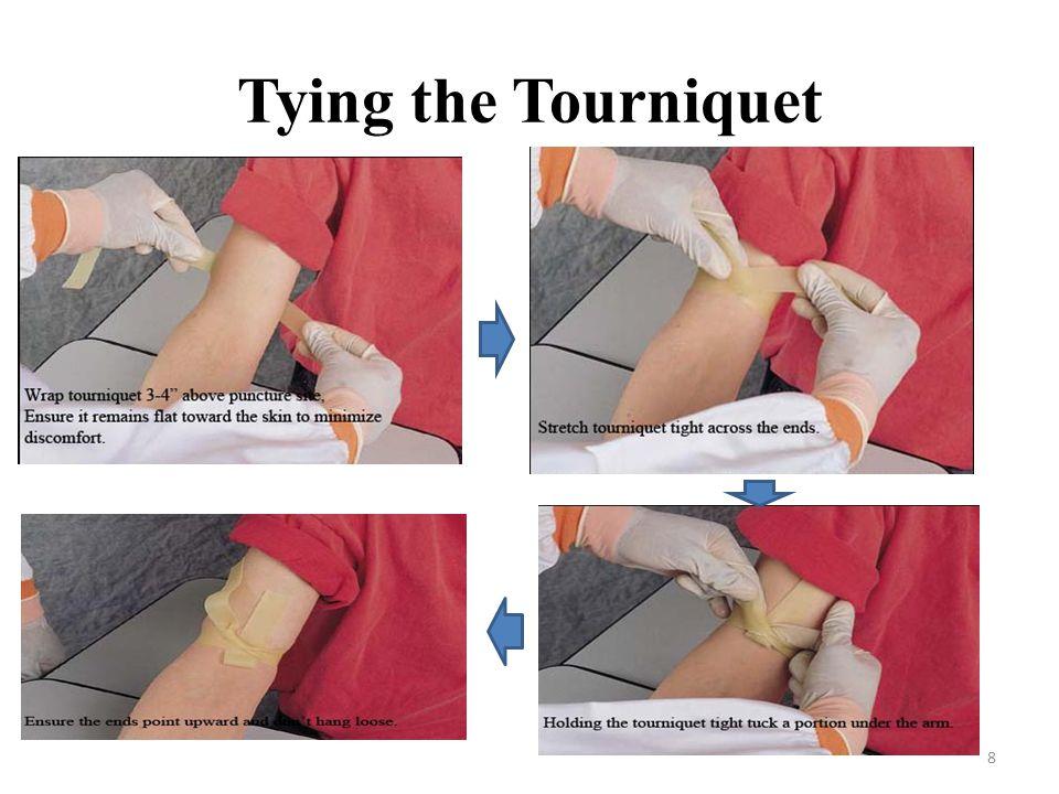 Tying the Tourniquet
