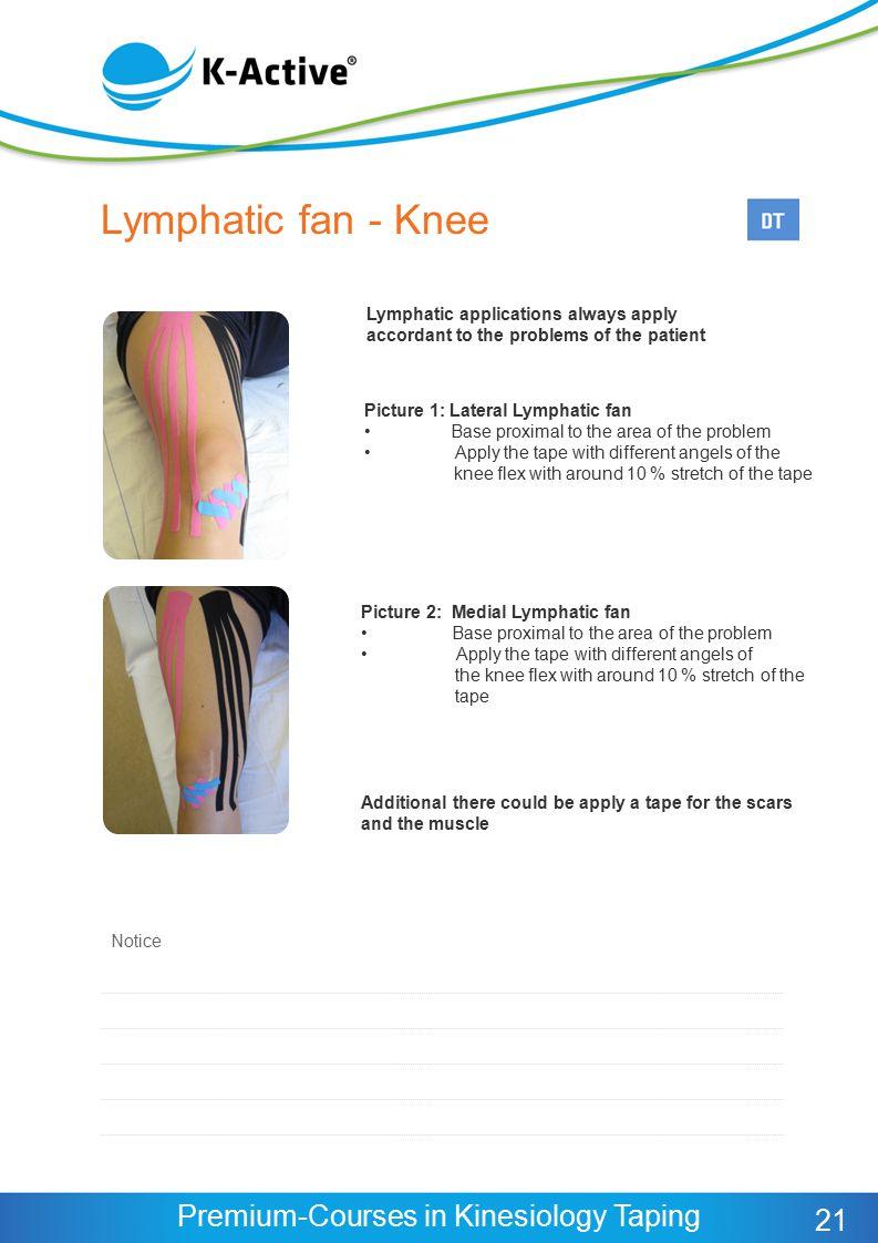 Lymphatic fan - Knee 21 Lymphatic applications always apply
