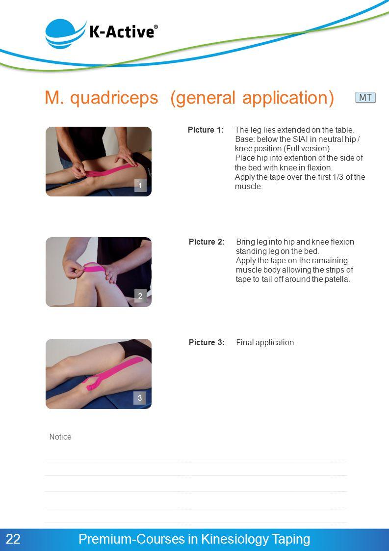 M. quadriceps (general application)