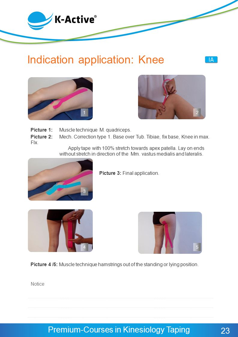 Indication application: Knee