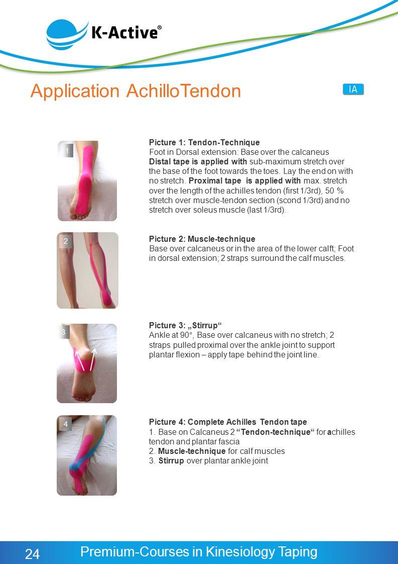 Application AchilloTendon