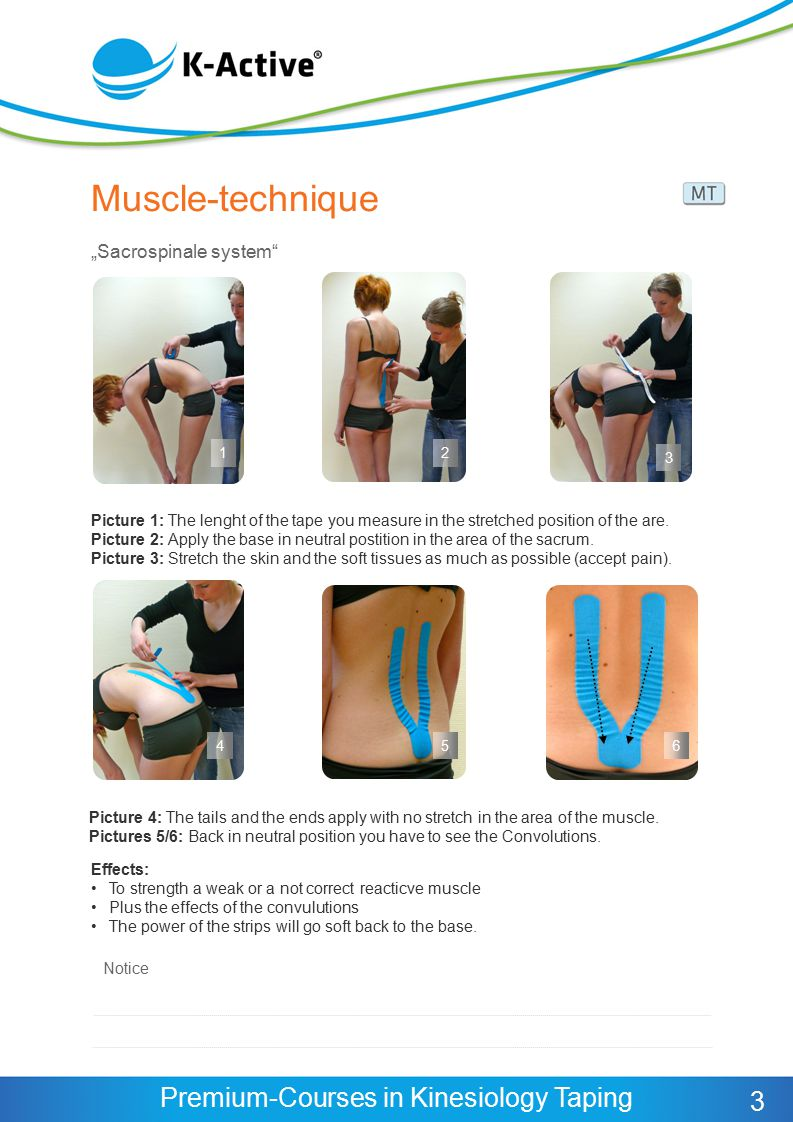 """Muscle-technique 3 """"Sacrospinale system Notice"""
