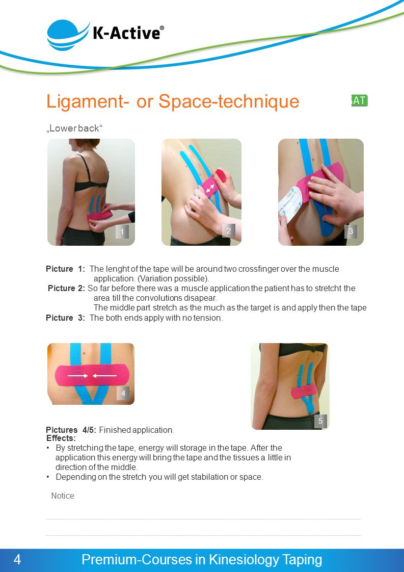 Ligament- or Space-technique