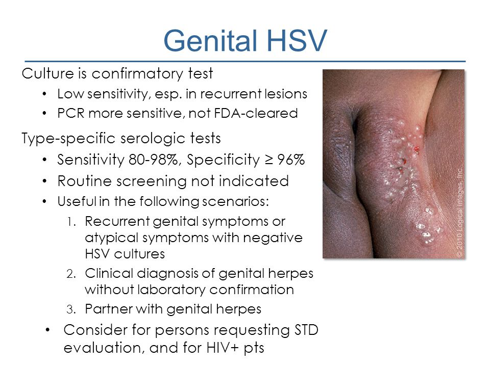Genital HSV Culture is confirmatory test Type-specific serologic tests