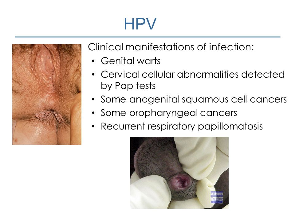 HPV Clinical manifestations of infection: Genital warts