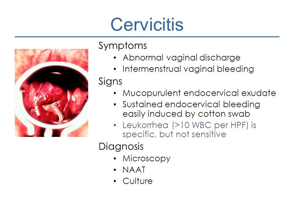 Cervicitis Symptoms Signs Diagnosis Abnormal vaginal discharge