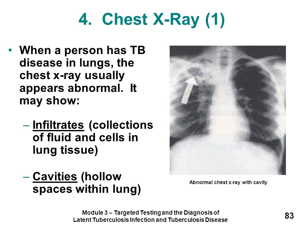 4. Chest X-Ray (1) When a person has TB disease in lungs, the chest x-ray usually appears abnormal. It may show: